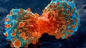 Cận cảnh tế bào bạch cầu chiến đấu với ung thư