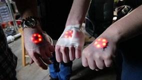 Trào lưu quái đản: Tự cấy đèn LED dưới da để có thể phát sáng!
