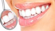 Sự thật hiển nhiên về hàm răng chắc chắn bạn không biết