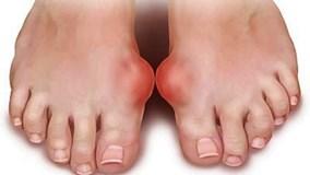 Bệnh gout: Điều trị bằng Đông Y hay Tây Y?