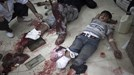 Thảm cảnh đau thương ở bệnh viện bị không kích  Aleppo, Syria