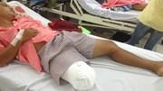TP.HCM: Bác sỹ chẩn đoán sai, bệnh nhân mất chân