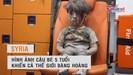 """Hình ảnh em bé """"bom đạn"""" ở Syria khiến cả thế giới bàng hoàng"""