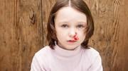 Chảy máu cam - dấu hiệu của nhiều bệnh nguy hiểm