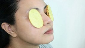Bí quyết trị bọng mắt, trị mụn, chống lão hóa chỉ bằng khoai tây