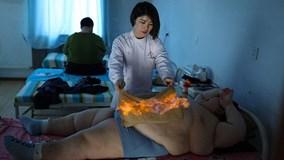 Rùng mình cảnh châm lửa đốt cháy mỡ bụng cho người béo phì