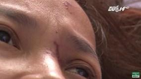 Một phụ nữ bị mù mắt, liệt nửa người do tiêm chất lạ vào mũi để làm đẹp
