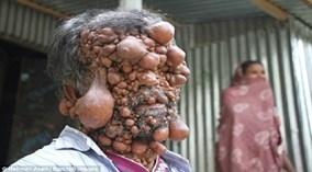 Người đàn ông có trăm khối u trên cơ thể