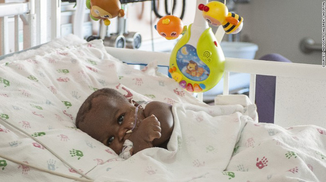 Phẫu thuật thành công cho bé gái có 4 chân và 2 cột sống - Ảnh 4.