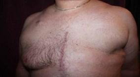 Kỳ lạ người đàn ông 3 lần bị ung thư vú