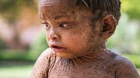 """Em bé có """"làn da thằn lằn"""" ở Ấn Độ"""