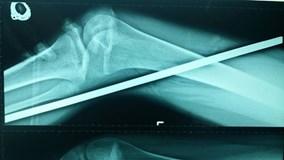 Đi qua công trình đang thi công, cô gái bị thanh sắt đâm xuyên chân
