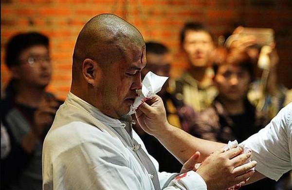 Wei Wei bị thương sau khi phải nhận một đấm vào mặt