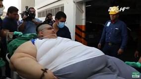 Người đàn ông béo nhất thế giới được phẫu thuật giảm cân