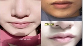 Thẩm mỹ 'môi sừng trâu' khiến giới trẻ 'ngậm đắng' không dám cười