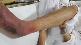 Nhiễm trùng huyết, chân mưng mủ vì xăm không an toàn