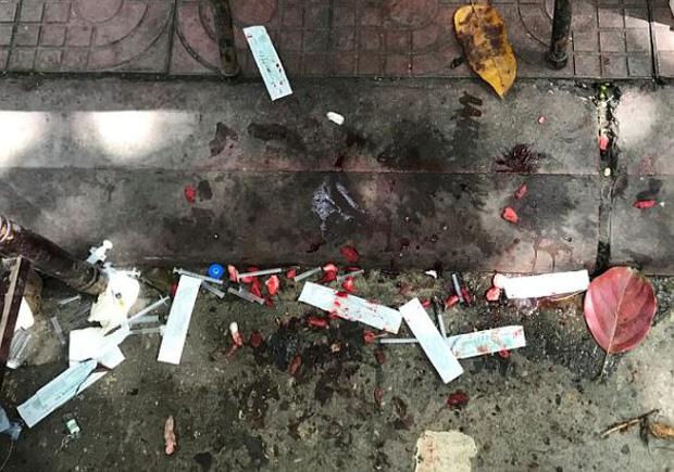 Gây mất trật tự, nhiều chú chó bị bác sĩ làng banh họng và cắt dây thanh quản giữa chợ - Ảnh 4.