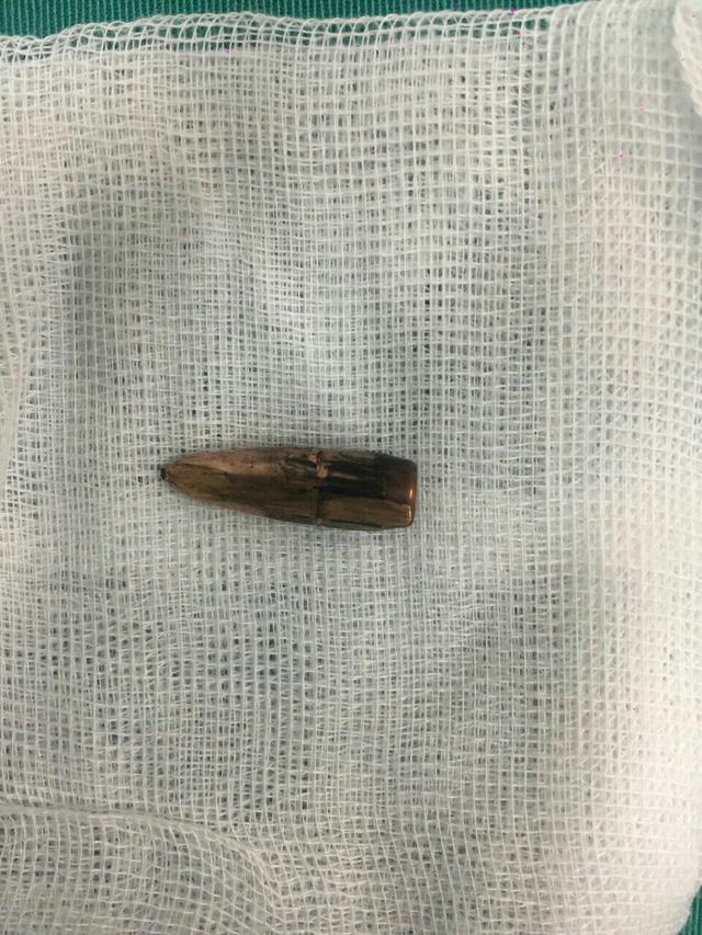Viên đạn được lấy ra từ ngực bà Trịnh Thị Lý