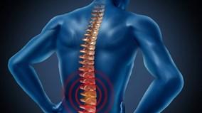 Liệu pháp gây tê màng cứng giúp người bị liệt đi lại được