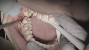 Nhổ răng khôn có thể gây biến chứng dẫn đến tử vong