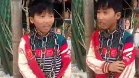Bé trai ở Thanh Hóa bị quấn vòng xích quanh cổ