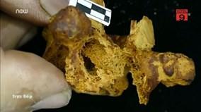 Tìm thấy tế bào ung thư cổ nhất 4000 năm tuổi