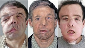 Chân dung người đầu tiên trên thế giới được ghép 2 khuôn mặt