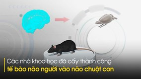 Bước tiến mới của y học: Cấy ghép thành công tế bào não người vào não chuột