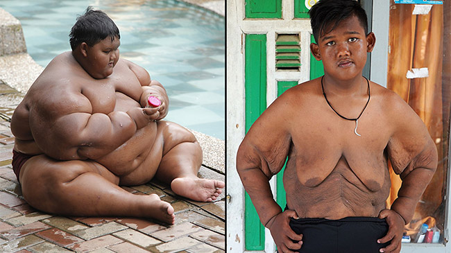 Cậu bé nặng nhất hành tinh và hành trình phẫu thuật...