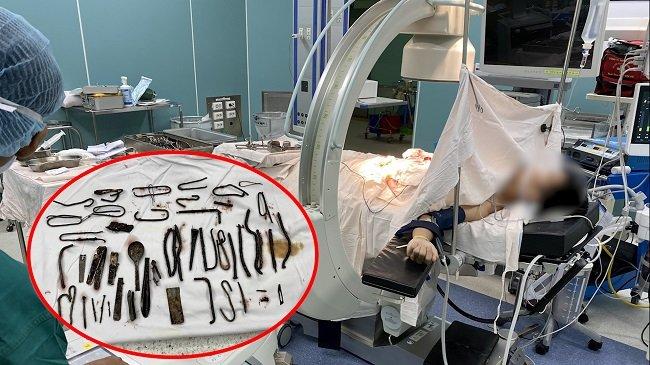 Bác sĩ gắp cả 'vựa ve chai' trong bụng bệnh nhân ở...