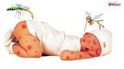 Làm sao tránh những bệnh nguy hiểm dễ tấn công trẻ ngày hè?