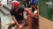 Sài Gòn: 2 thanh niên bị đâm trọng thương khi truy đuổi cướp