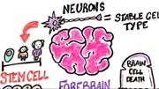 Mất ngủ, hút thuốc, khí thải, uống rượu... phá hủy não bộ như thế nào?