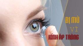 Đừng để bị mù vì lỗi nhỏ nhặt này khi dùng kính áp tròng