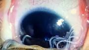 Bác sĩ gắp 11 con giun lúc nhúc trong mắt bé trai