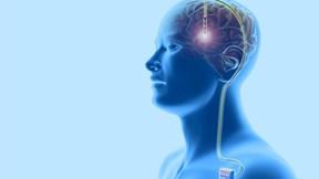 Phẫu thuật não để cai nghiện ma túy đá được thực hiện như thế nào?