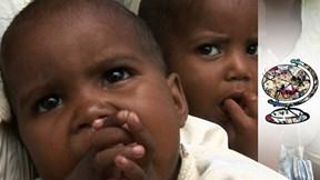 Bộ lạc kỳ thị và bỏ mặc trẻ sinh đôi đến chết vì sợ rắc rối