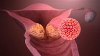 Hiểu về HPV - virus lây qua đường 'yêu' phổ biến nhất hiện nay