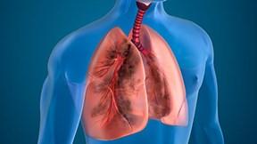 Báo động ô nhiễm không khí, dấu hiệu nào cảnh báo phổi đã tổn thương?