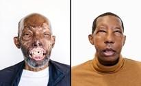 Người Mỹ gốc Phi đầu tiên được cấy ghép mặt sau tai nạn xe thảm khốc