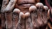 Bộ lạc tự cắt ngón tay khi người thân chết, ngủ chung với xác ướp sấy khô