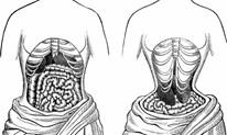 Lạm dụng đai nịt bụng, lợi bất cập hại