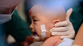 Gần 100 y bác sĩ tách thành công cặp song sinh dính liền