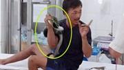 Bị cắn, bệnh nhân ôm luôn rắn hổ mang chúa dài 3m, nặng 4,5kg đi cấp cứu