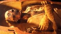 Bí ẩn chuyện phẫu thuật thẩm mỹ cho xác ướp 'điển trai' nhất thế giới