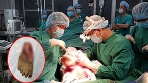 Nối chân cho bệnh nhân bị lưỡi máy cắt cỏ cắt lìa cổ chân