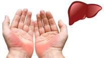 Những bất thường trên bàn tay cảnh báo sức khỏe đang gặp vấn đề