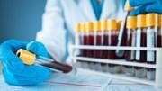 Nhóm máu nào có nguy cơ bị đau tim cao nhất?