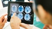 7 dấu hiệu sớm cảnh báo u não nhất định cần biết